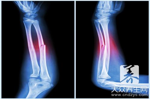 骨愈合过程-第2张