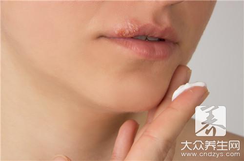 怀孕嘴巴长疱疹怎么办-