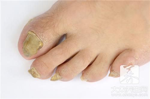 轻度灰指甲