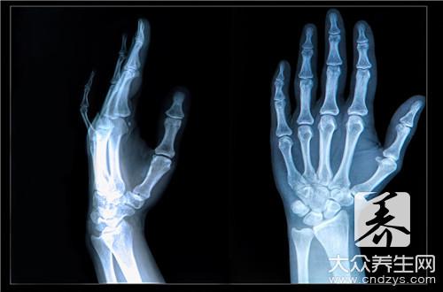 右桡骨远端骨折严重吗-第2张