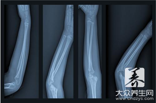 右桡骨远端骨折严重吗