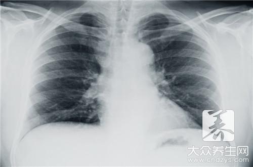 胸疼应该做什么检查-第2张