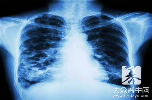 肺结核是一种什么病
