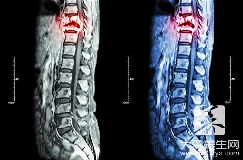 脊柱骶尾部是哪个部位