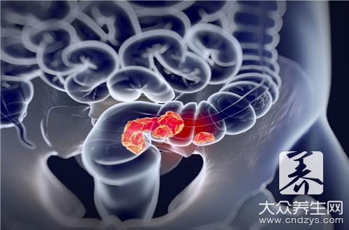 结肠菜花状肿瘤-第3张