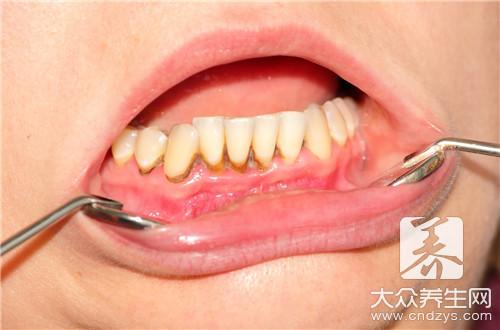 牙齿怎么洗白