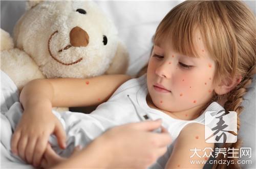 小孩子荨麻疹怎么办