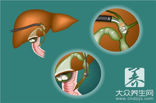 胆管结石手术过程