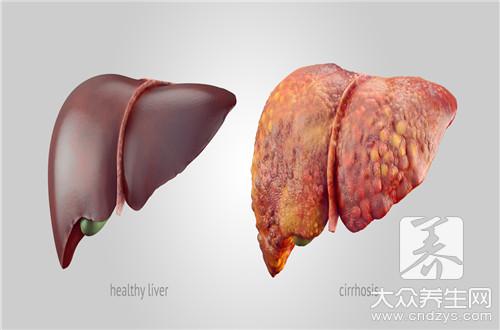 肝燥综合征要怎么治疗