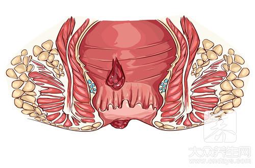 幼儿肛门有个肉块
