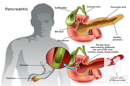胆管里有结石怎么办