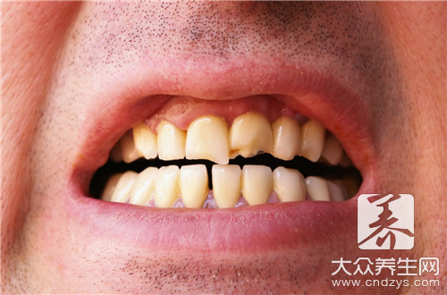 溶解牙结石