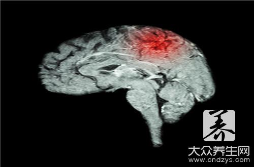 脑干的组成_脑干由什么组成