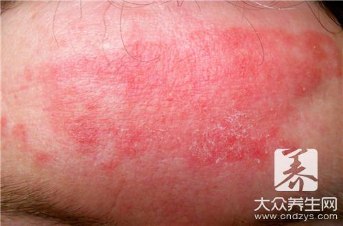 痱子粉能治湿疹吗