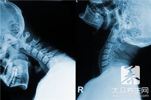 颈椎病不能做什么运动