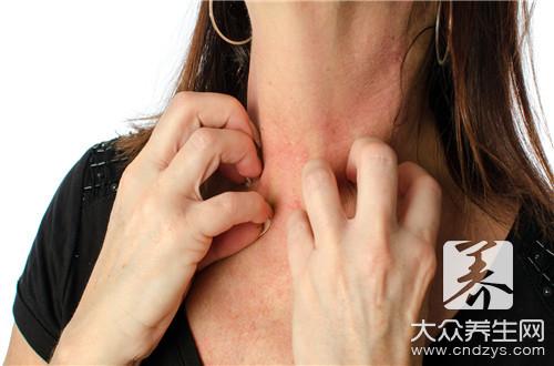 哺乳期过敏性皮炎怎么办