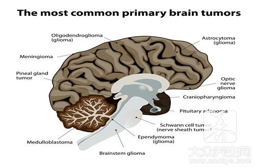神经免疫性疾病