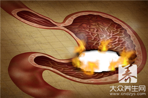 保护肠胃的药