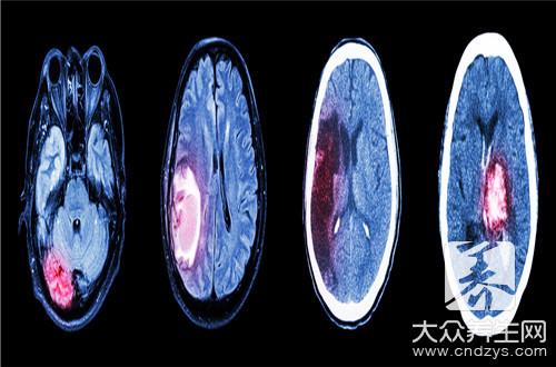 脑瘤挂什么科
