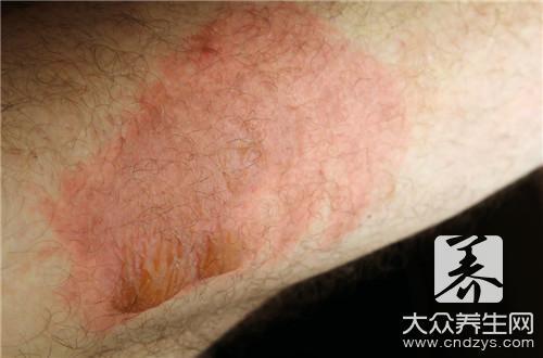 狼疮红斑的症状有哪些?