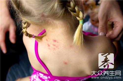玫瑰糠疹后期症状,早知道早防御-第2张