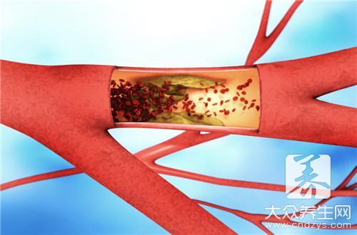 心肌缺血患者能不能运动?-第3张