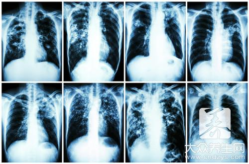 肺脓肿症状,这些你都了解吗--第2张