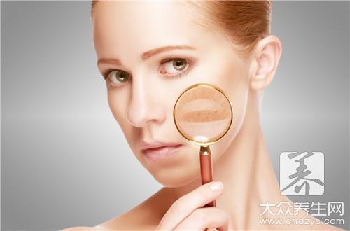 皮肤过敏能不能刮痧 面部刮痧常识-第2张
