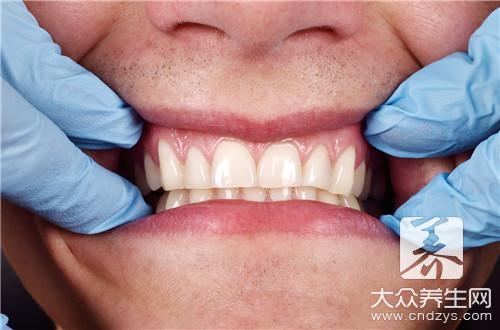 牙龈萎缩是什么原因呢-第2张