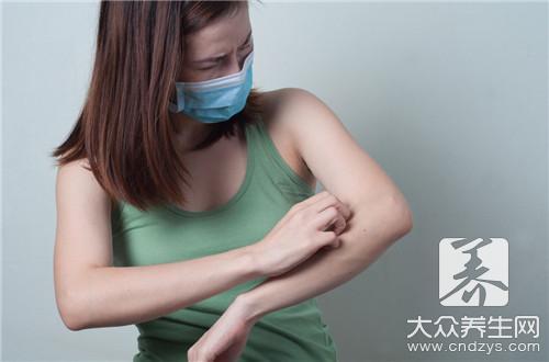 中医治过敏性皮炎效果好吗?