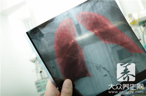 肺癌患者的饮食有什么原则-第1张