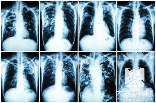肺癌咳嗽会传染吗,为什么-第2张
