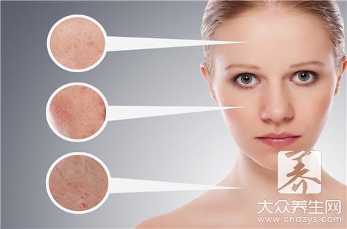痤疮粉刺的治疗方法-第1张