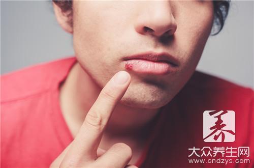 带状疱疹痒怎么办,教你3个治疗方法