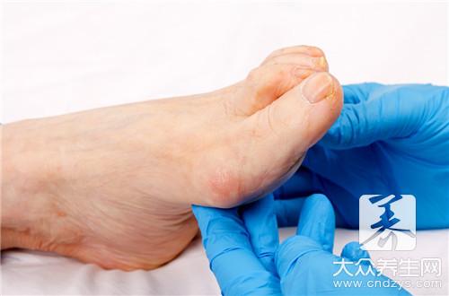 脚外翻怎么治疗 把握最佳治疗期-第1张