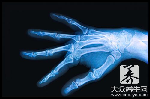 骨髓纤维化是什么病?
