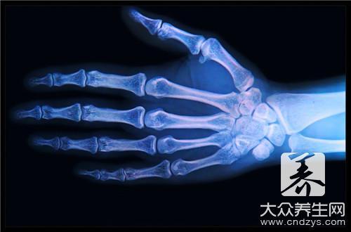 骨髓瘤治疗方法有什么?-第2张