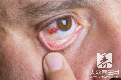 眼部带状疱疹会有的表现你知道吗-第2张