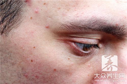 青春痘的治疗方法是什么?