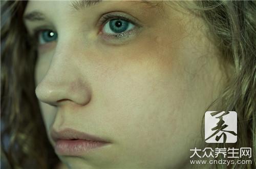 吃什么能淡化黑眼圈?